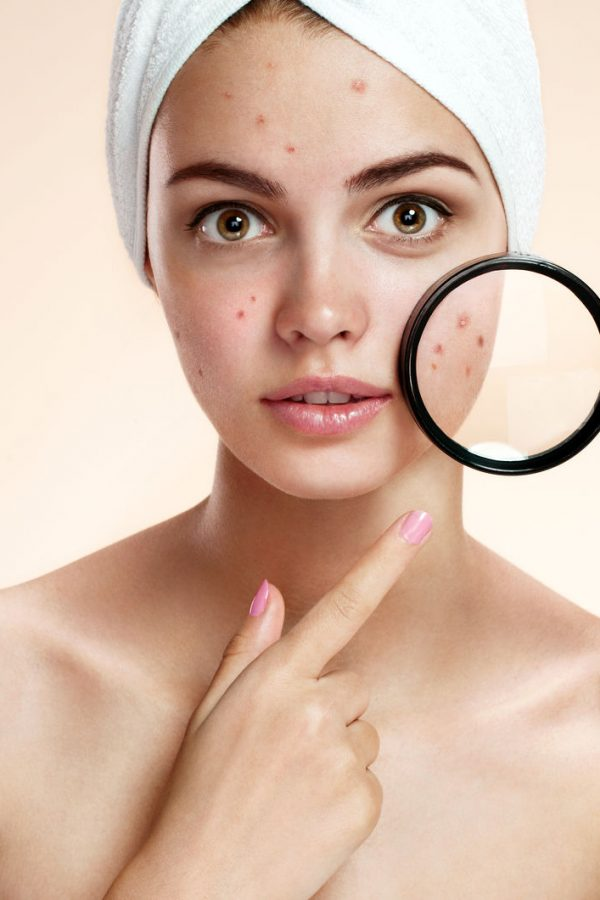 7 acne myths busted?