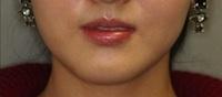 Botox 1