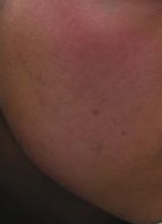 After Micro Needling
