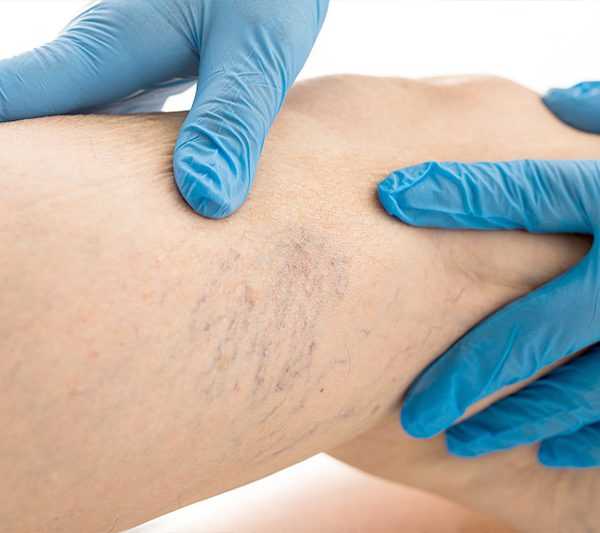 Sclerotherapy 3