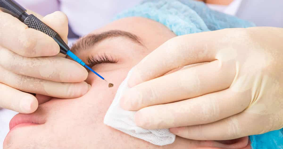 Warts Removal | Skin House Beauty and Laser Clinic