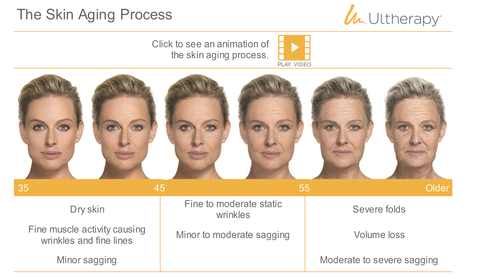 Ultherapy | Skin House Beauty and Laser Clinic